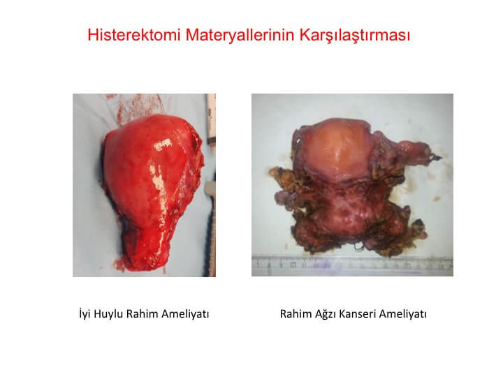 Histerektomi Ameliyatlarının Karşılaştırması