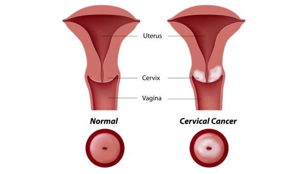 a genitális szemölcsök kezelésének hatékonysága