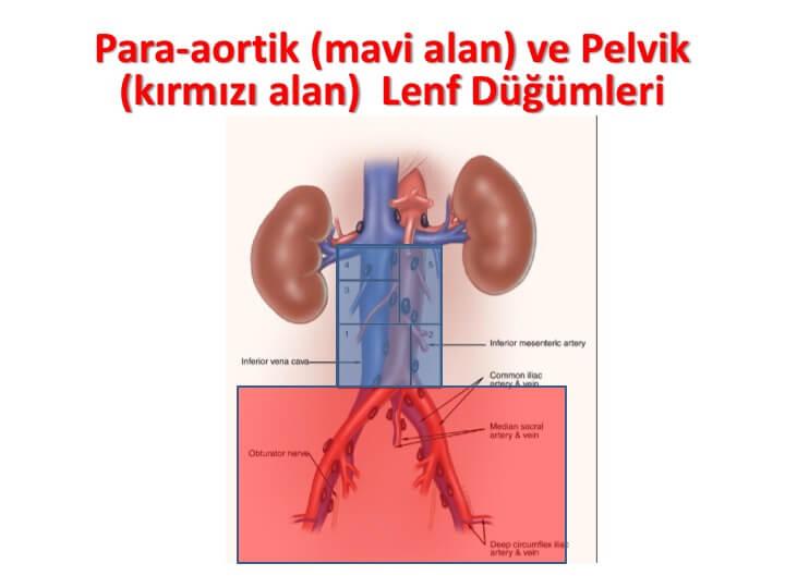 para-aortik-mavi-alan-ve-pelvik-kırmızı-alan-lenf-düğümleri
