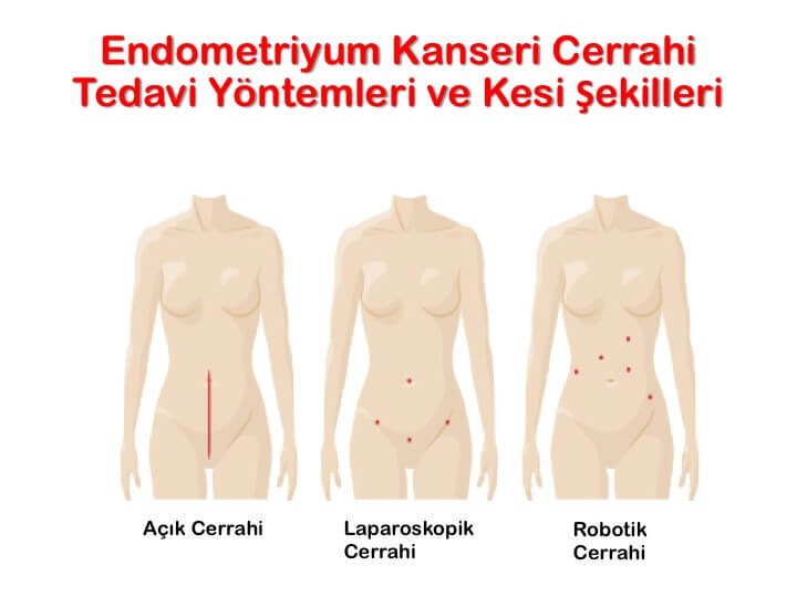 endometriyum-kanseri-rahim-kanseri-cerrahi-tedavi-yöntemleri-ve-kesi-şekilleri
