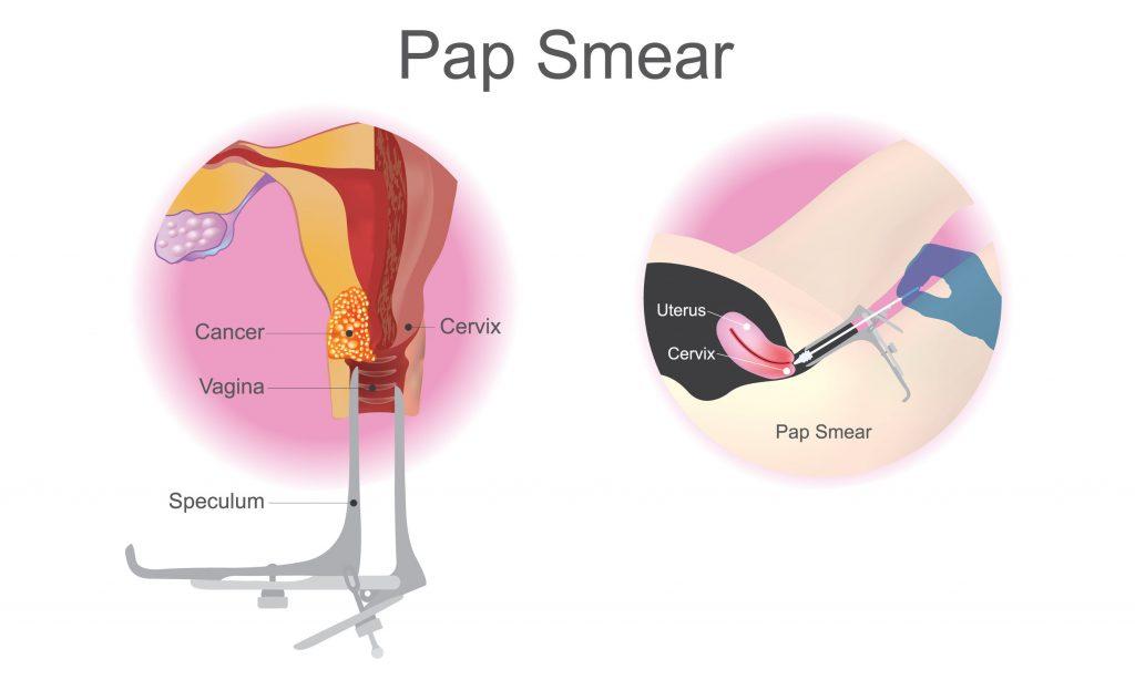 Pap smear testi sonucu