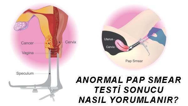 Hpv sonuc negatív - Mit csinálj, ha pozitív lett a HPV-teszted? | Neumann Easy Testing